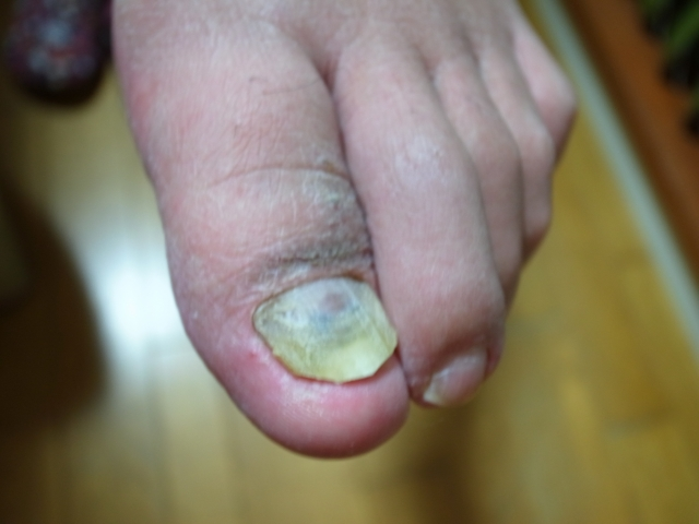 巻き爪や爪のトラブル